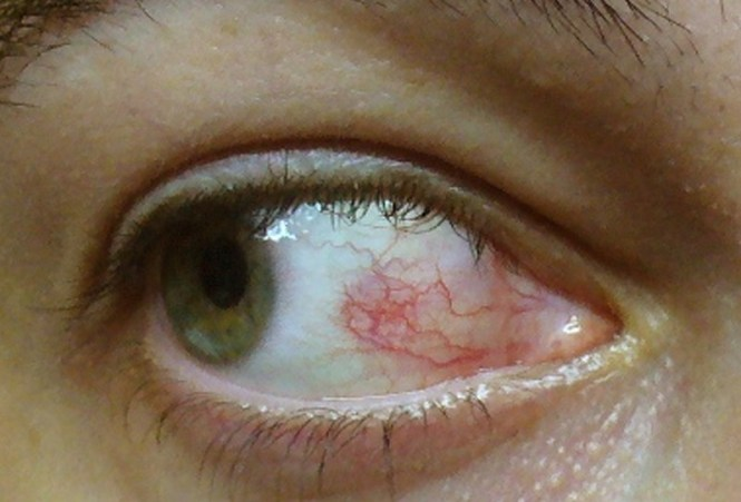 What Does Herpes Of The Eye Look Like 1