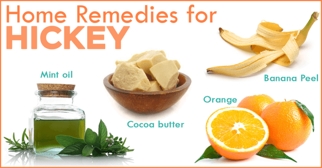 hickey home remedies