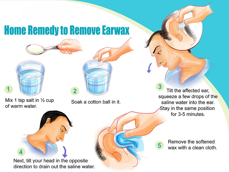 Natural Ear Wax Removal Baby