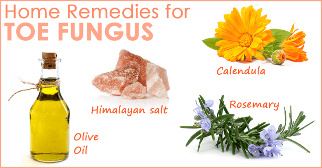 toe fungus natural remedies