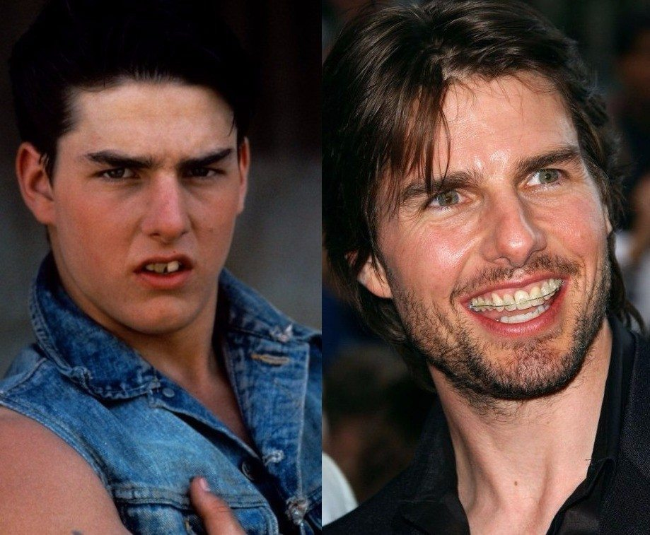 Tom Cruise teeth