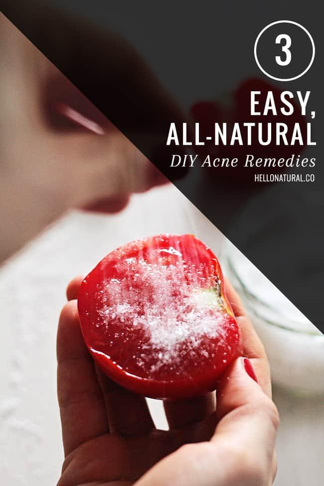 3 Homemade Acne Remedies