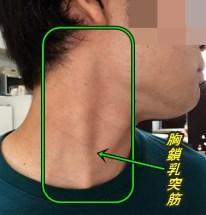 胸鎖乳突筋 触診