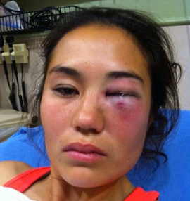 St Louis Woman Falsely Accuses 3 Black men of Knock Out Game Attacks