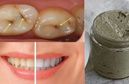 Heal Cavities, Gum Disease, And Whiten Teeth With This Natural Homemade Toothpaste