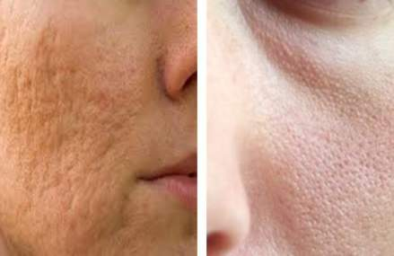 How to Make Acne Scars and Large Pores Disappear With This!