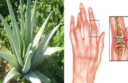 You Can Fight And Cure Arthritis With These Natural Herbs And Oils