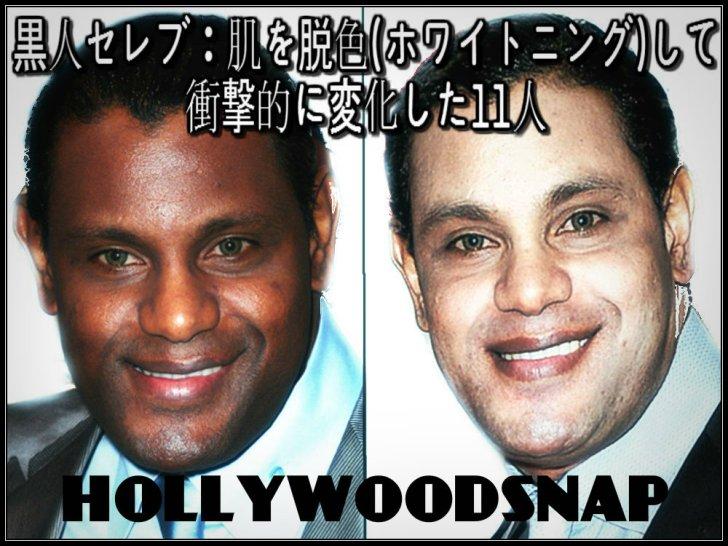 黒人が肌を白くする 肌の脱色、漂白、ホワイトニング