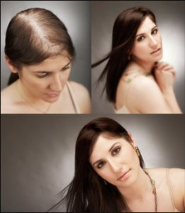 3-stages-of-hair-growth