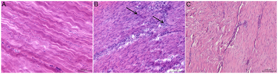 Typical microscopic appearance of normal and injured equine flexor tendons.