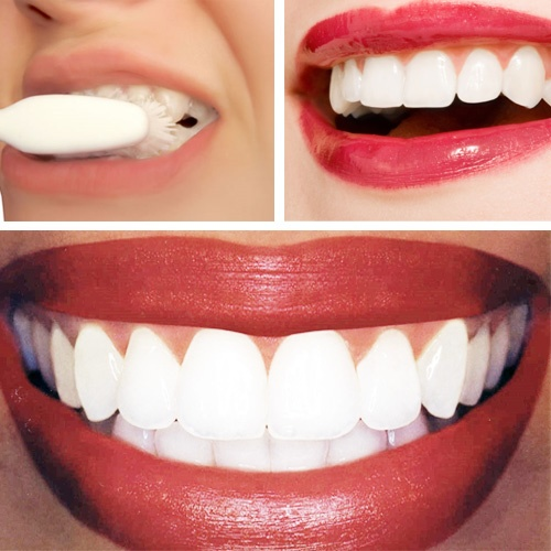 Dr.Oz At Home Teeth Whitening