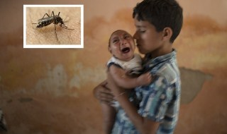 Zika-virus-birth-defect