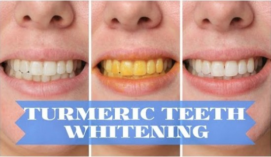Whiten-Teeth-with-Turmeric-550x319