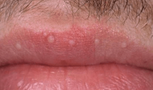 What causes tiny white bumps on upper lip — photo 1