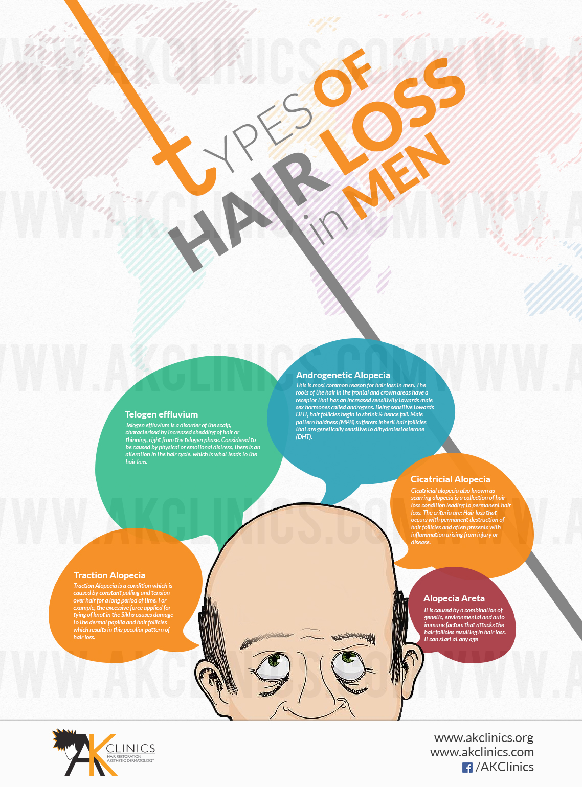 types-of-hair-loss-in-men-infographic_548ed2bab97a0