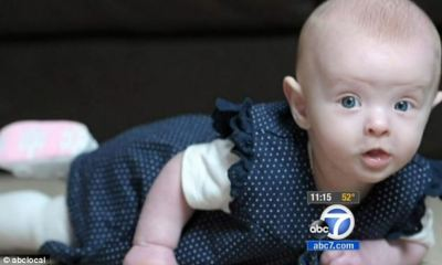 Doctors saved Hope's life by giving her a blood transfusion and she's now a healthy six-week-old baby