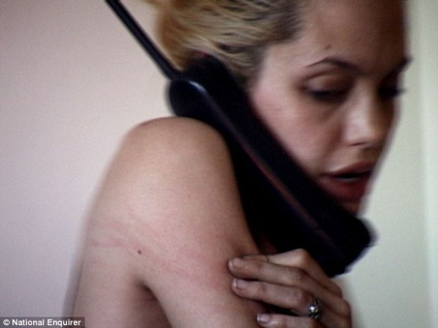 Uncomfortable: The star digs her fingers into her skin while chatting on the phone, leaving behind red marks