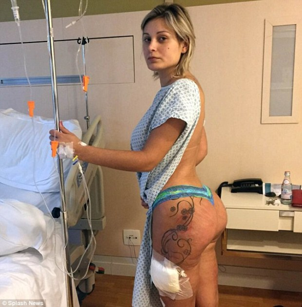 Back in care: Just weeks after Miss BumBum model Andressa Urach was released from hospital over her infected legs, she has been rushed back to hospital to remove infected buttocks implants