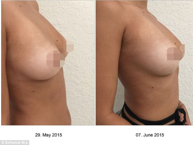 What a feeling! Andrena added about her newly-enhanced breasts: 'I would totally recommend this to friends. I wouldn't want to go under the knife but something so non-invasive like this is just incredible'