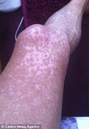 Natalie's leg during the UVB phototherapy
