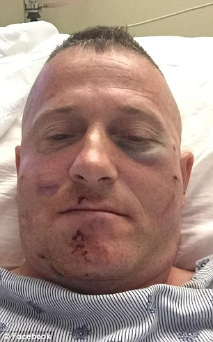 Richard Ojeda, running for West Virginia state senate is beaten at a cookout   Daily Mail Online