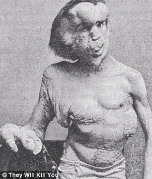 Mystery: Joseph Merrick was born in 1862 England and was known as the Elephant Man. It is believed he may have suffered from a combination of disease including Proteus syndrome, which causes tumours to form all over the body
