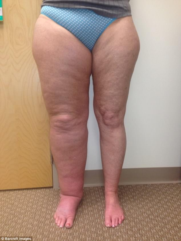 Mum with leg THREE times its normal size gives up dating The swelling caused by blocked lymph vessels and condition can be hereditary