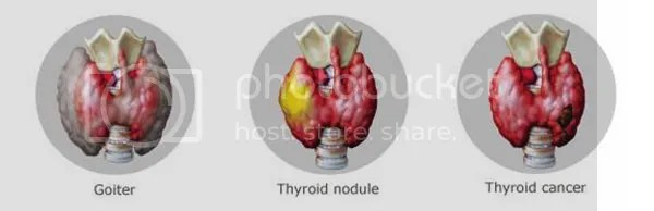 Merck Inc.'s Thyroid Disorder Awareness