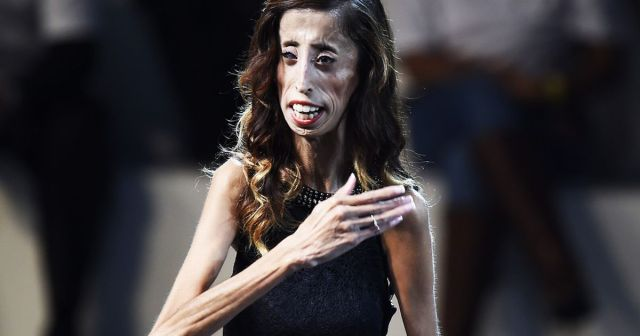 Image result for Lizzie Velasquez