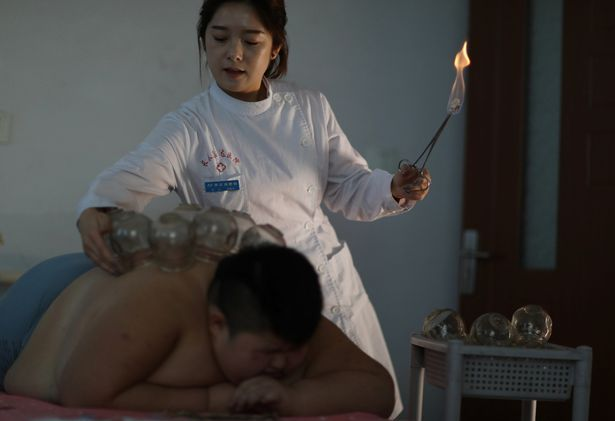 A Chinese medicine doctor performs 'baguan' or 'fire cupping' on obese patient, Li Hang, to help him reduce weight at the Changchun Kangda Hospital in Changchun city, Jilin Province of China, 25 November 2016