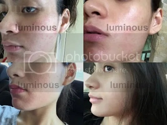 luminous skincare