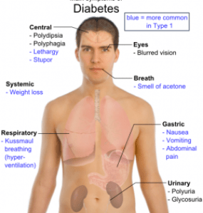 main_symptoms_of_diabetes
