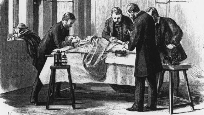 Una ilustración de una cirugía alrededor de 1860