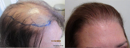 This women had 1830 grafts placed in one session. Procedure performed by Dr. Sean Behnam. This woman had ludwig class 3 hair loss.