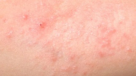 heat rash skin condition