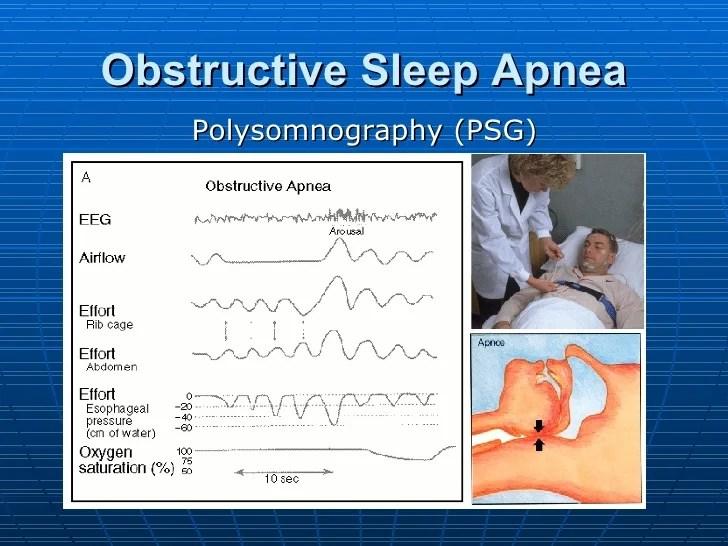 Sleep Apnea and the Eye