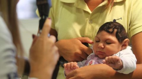 Bebê com microcefalia faz testes em Recife (Crédito: Diego Nigro/JC Imagem / Ag. O Globo)