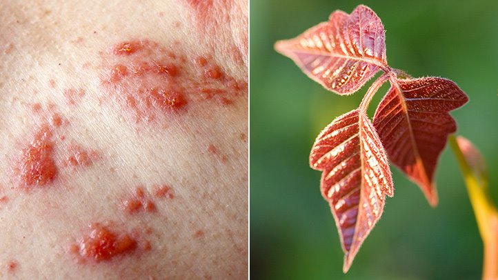 Poison Ivy Rash  Causes  Prevention  When to See a Doctor   Everyday     What Does Poison Ivy Look Like