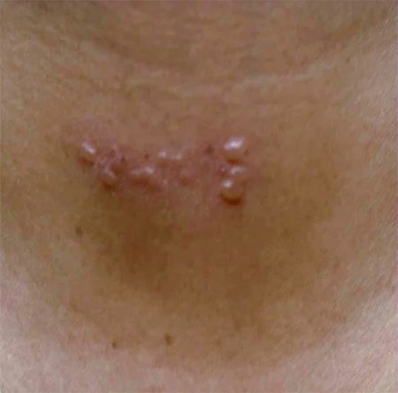 Signs And Symptoms Of Shingles In Adults 2