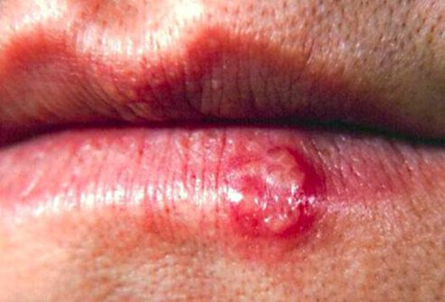 Cold Sores In Mouth Herpes 2