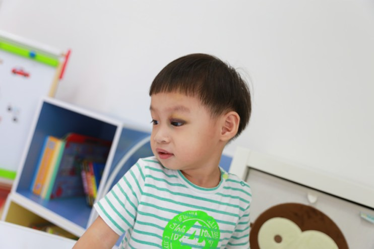 【Talk】孩子受傷,長輩們的反應…….