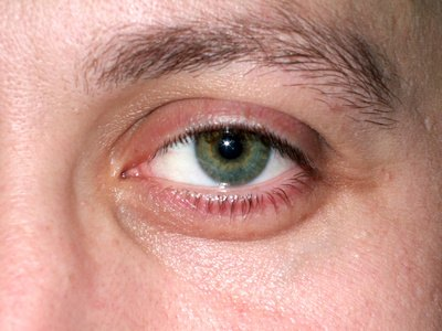What Are The Causes Of Eye Puffiness Swollen Fingers