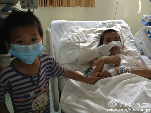 13-year-old Du Chuanwang and his younger brother in the hospital.