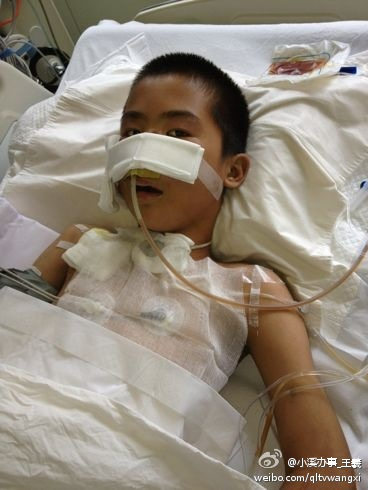Du Chuanwang, a 13-year-old Chinese boy lying in a hospital bed who is in critical condition after coworkers at an auto repair shop inserted an air pump into his anus and pumped him air into his body.