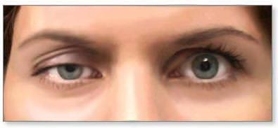 雙眼皮手術為什麼會有大小眼?