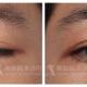 提眼肌無力終極手段——復明皮瓣