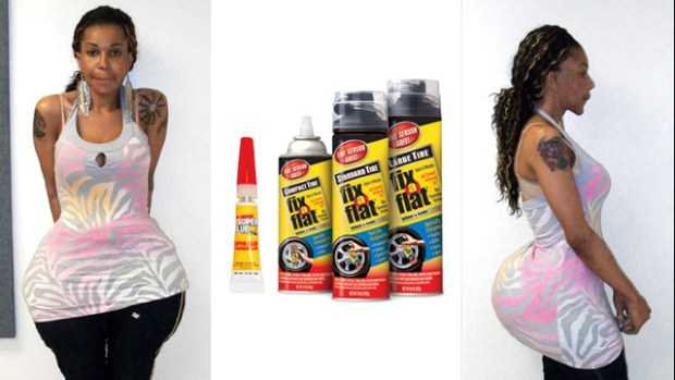 Woman Gets Fix-A-Flat Tire Sealant, Cement, Mineral Oil and Superglue Injected Into Her Butt
