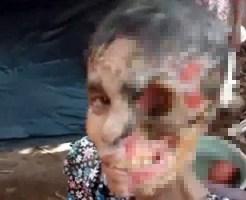 【グロ動画:鳥肌】顔の半分が骸骨になってしまった少女・・・