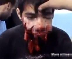 【グロ動画:怪我】鼻から下が吹き飛んでぐちゃぐちゃ・・・それでも生きてる少年・・・