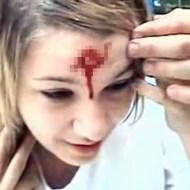 【グロ動画:怪我】蛍光灯の上の頭を踏む・・・頭から血が止まらない女性( ゚∀゚ )